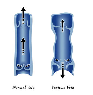 chronic-venous-insufficiency-image